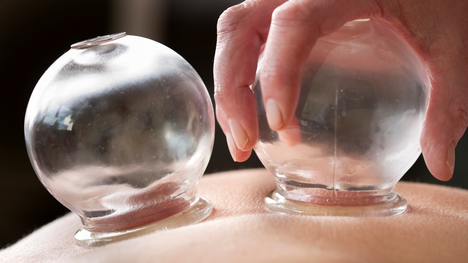 What is cupping? Why do so many people recommend cupping?