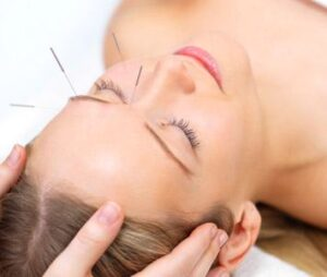 What is acupuncture and how does it help