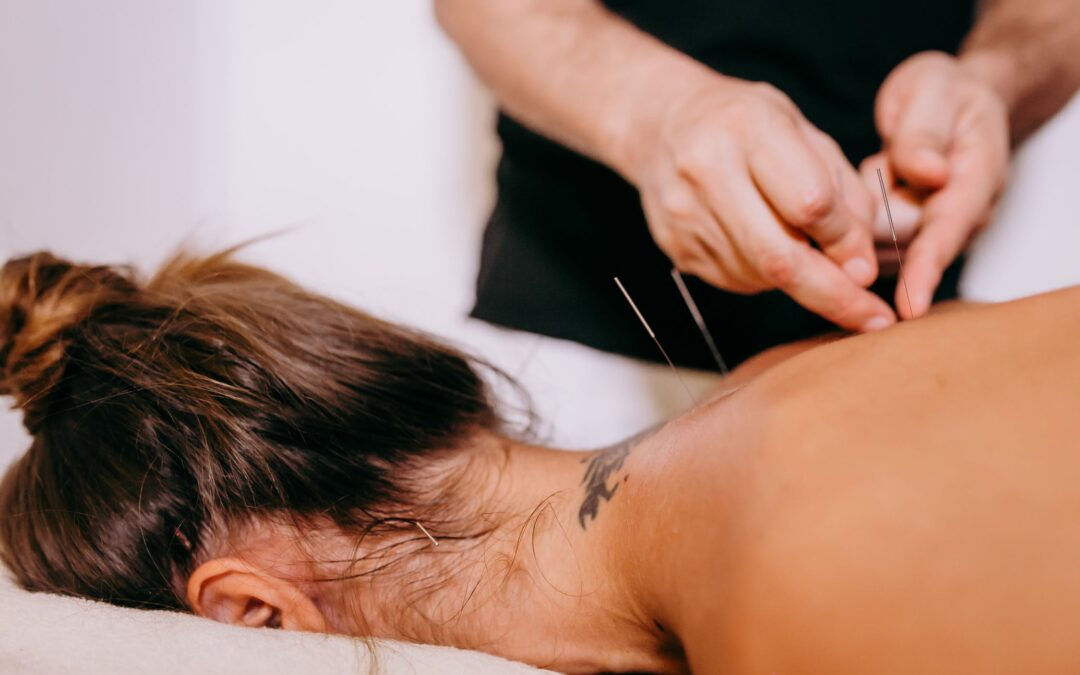 How Long Does Acupuncture Take to Work?